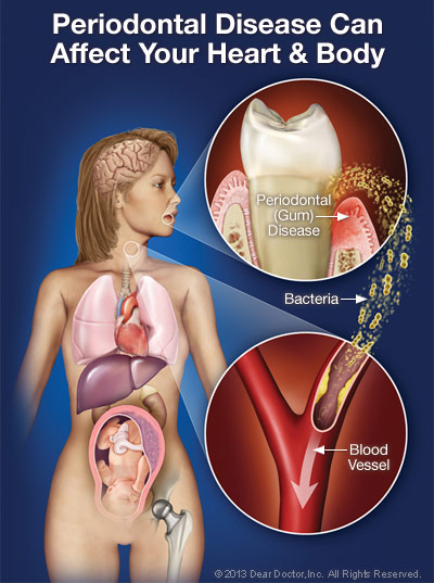Gum disease and how it affects the body
